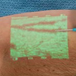 静脈を透過して注射の失敗を完全になくすデバイス「VeinViewer」